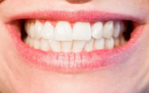 tooth cavity bad breath