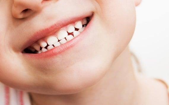 Child teeth after dental care